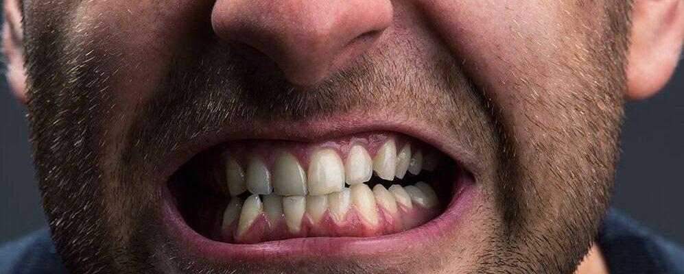 Problemas habituales de dientes en los deportistas profesionales